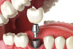 Klempka-Dental-Implants-2