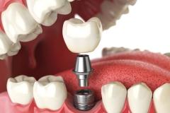 Klempka-Dental-Implants-2