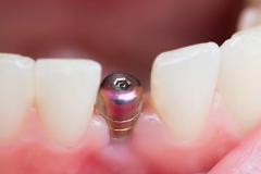 Klempka-Dental-Implants