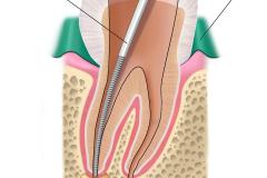 Klempka-Dental-Endodontics-1