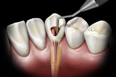 Klempka-Dental-Endodontics-2