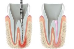 Klempka-Dental-Endodontics