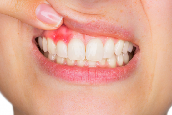 Gum Diseases treatment
